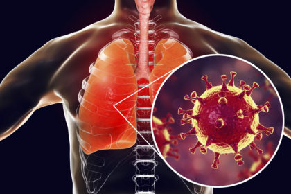 Glycyrrhizin: An alternative drug for the treatment of COVID-19 infection and the associated respiratory syndrome?