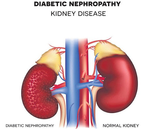 The effects of vitamin D 3 supplementation on some metabolic and inflammatory markers in diabetic nephropathy patients with marginal status of vitamin D: A randomized double-blind placebo controlled clinical trial